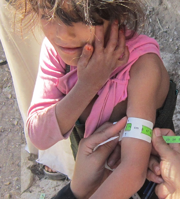 A child screened for malnutrition in Yemen